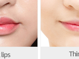 Cheiloplasty: Ethnic Differences, Aesthetic Perceptions, Techniques and Approaches in Lip Augmentati