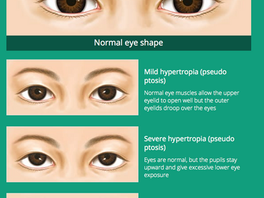 5-Point Non-Incisional Blepharoplasty with Threads for Double Eyelid and Minor Ptosis Correction - [