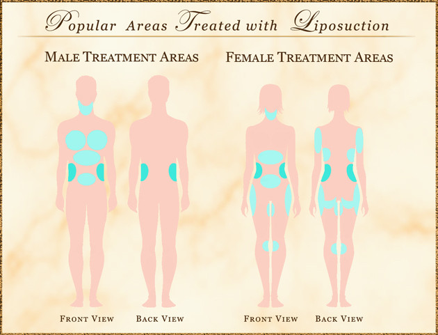 Areas of Treatment
