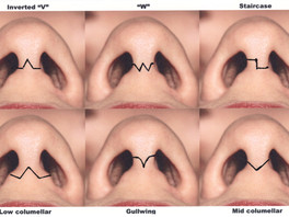 Approaches for Rhinoplasty: Open vs Closed - An Exclusive Abstract of Rebuilding Nose: Rhinoplasty f