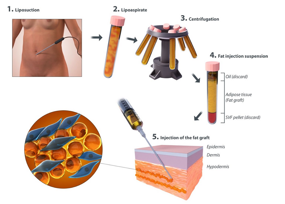 Liposuction & Fat Grafting Process