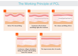 Trends and Evolution of Thread Lifting: PDO vs PLLA vs PCL