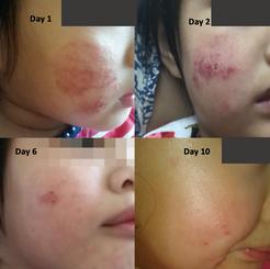 Eczema (Age: 3)