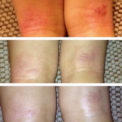 Eczema (Age: 4)