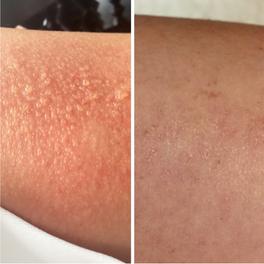 UV Allergy