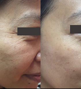 Wrinkles-2days皺紋-魚尾紋-2日.jpeg