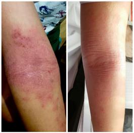 Dustmite Allergy
