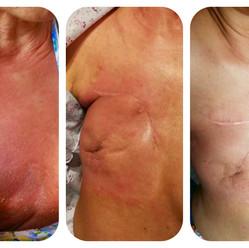 Radiotherapy Burn