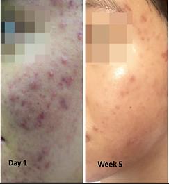 Acne-5weeks-暗瘡-5星期.png