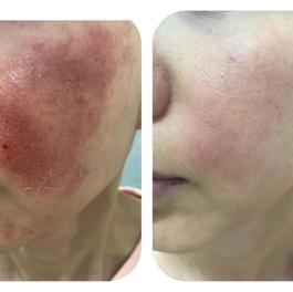Face Allergy