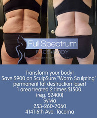 Save $900 now!_#SculpSure #warmsculpting