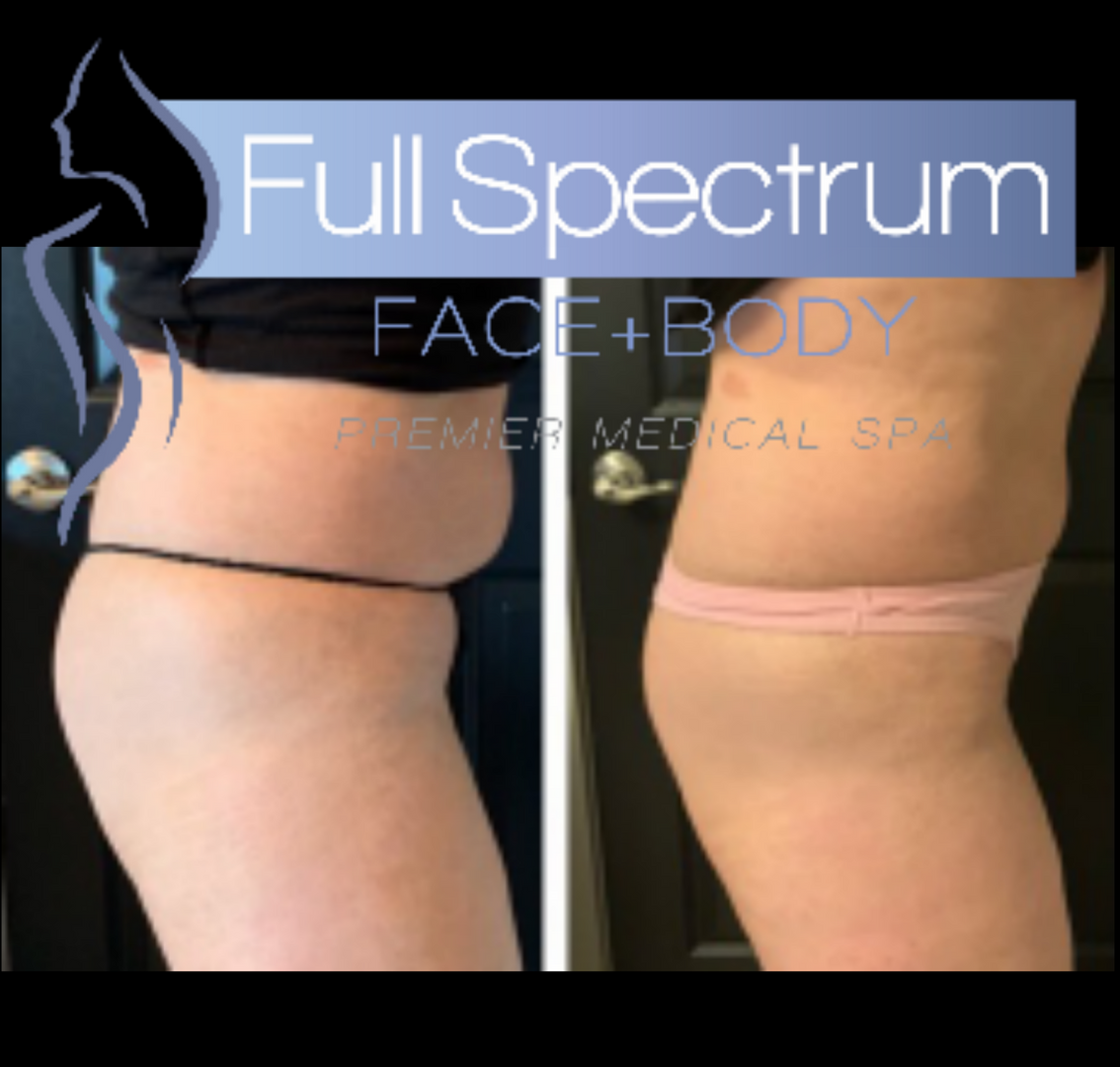 SculpSure post 2 treatments 12 weeks