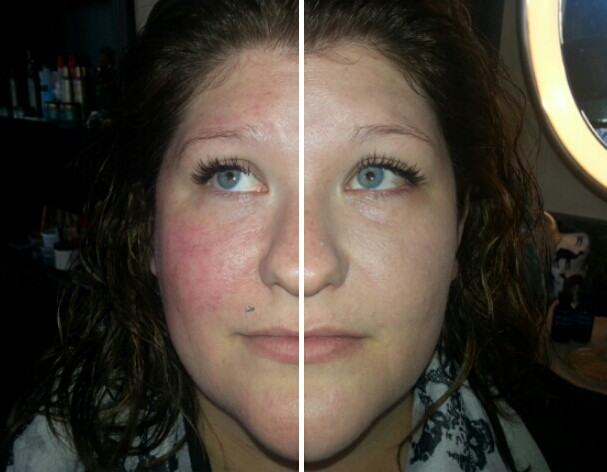 custom foundation before/after