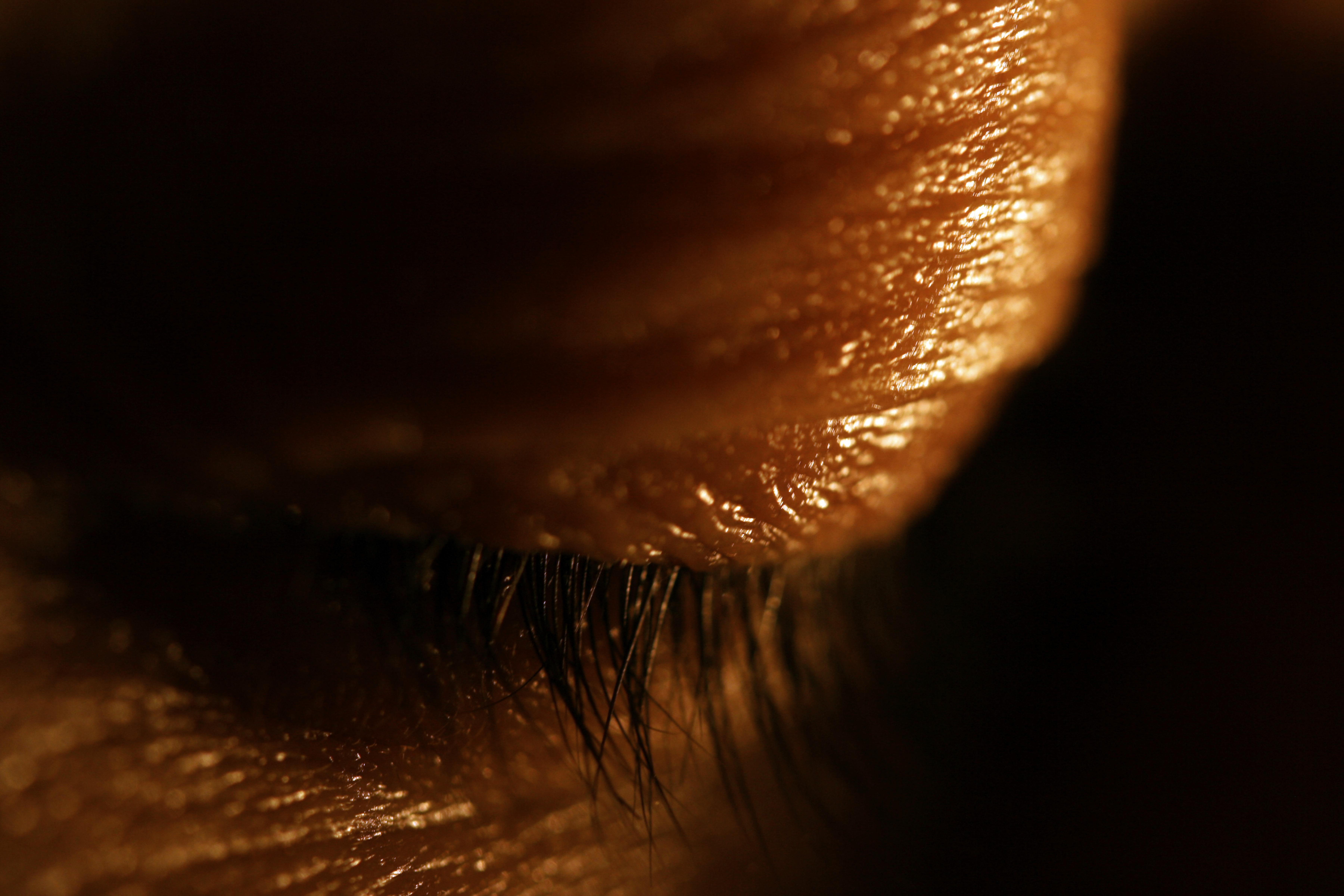 eyelid.jpg