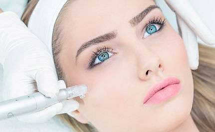 Microneedling Almere