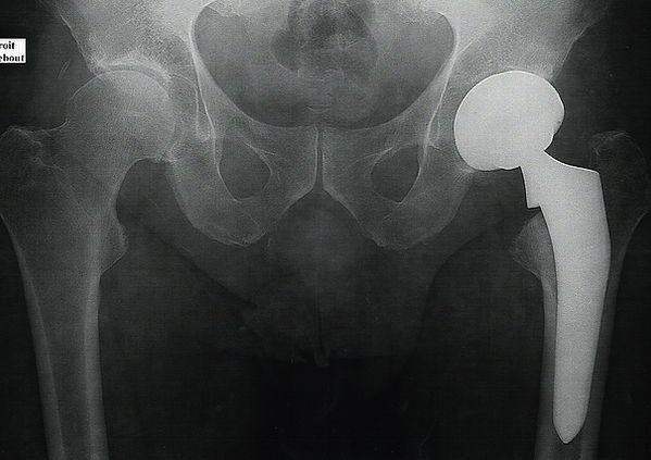 Prothèse de hanche par voie antérieure - Dr Grégoire BONJEAN