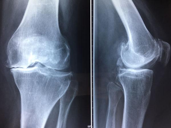 Arthrose de genou - Dr Grégoire BONJEAN