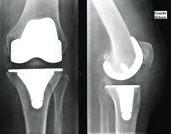 Prothèse de genou - Dr Grégoire BONJEAN