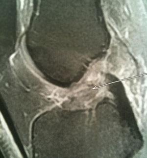 IRM rupture ligament croisé antérieur - Dr Grégoire BONJEAN