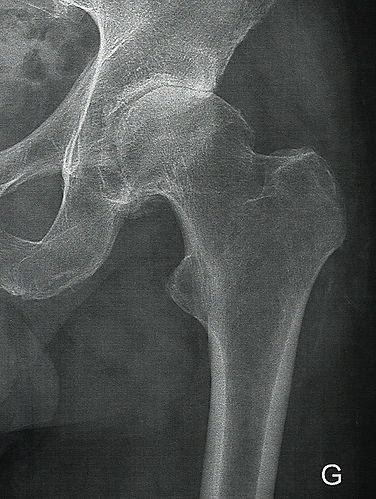 Arthrose de hanche - Dr Grégoire BONJEAN