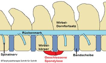 Spondylose 3.png