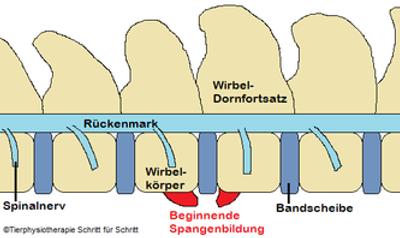 Spondylose 2.png