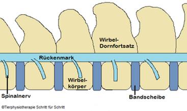 Spondylose 1.png
