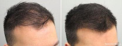 alopecia-areata-tratamento-minoxidil.jpg