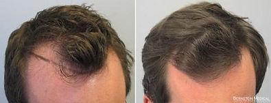 antes-e-depois-minoxidil1.jpg