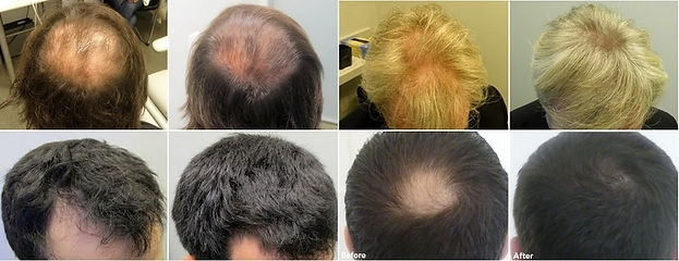 Fotos-antes-e-depois-do-minoxidil-rogain
