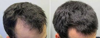 minoxidil-results-min.jpg