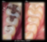 Tooth Colored Composite Resin Filling and Porcelain Onlay