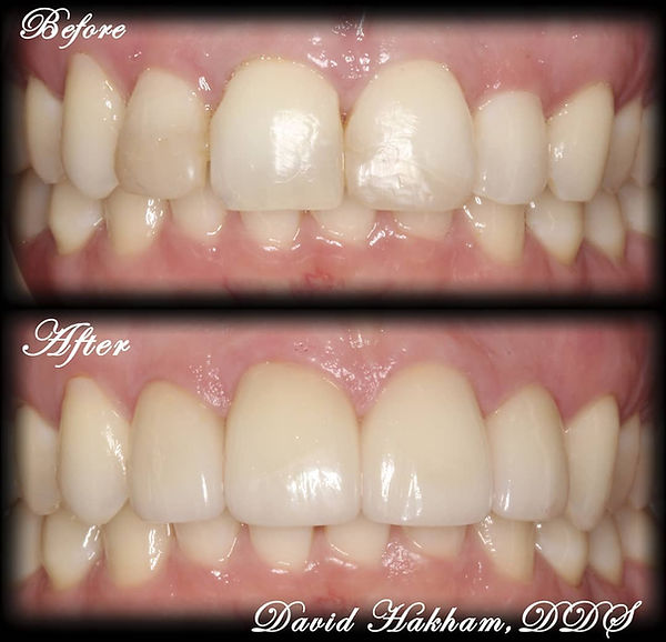 Porcelain Veneers Smiles by Dentist in M