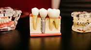 Dental Implants Done by Dentist Montebello and Downey