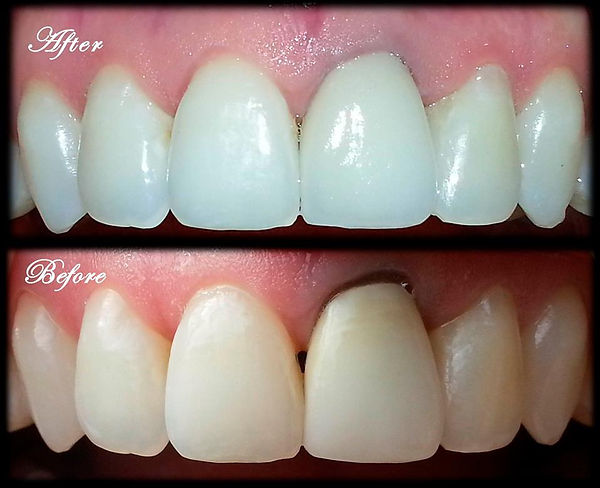 Zirconia Porcelain Crown
