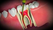 Root canal treatment of a molar tooth to prevent infection and reduce pain