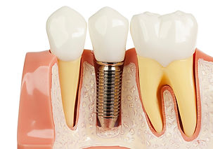 Dental Implants_edited.jpg