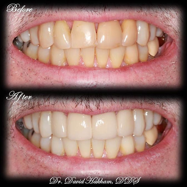 Porcelain Veneers and Teeth Whitening