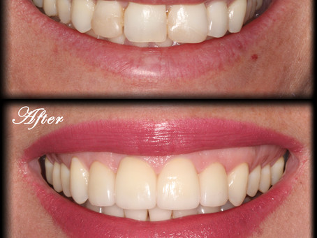 Improving Patients' Smile and Self Confidence