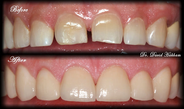 Improved Smile with Veneers and Cosmetic Dentistry