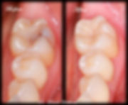 Tooth Colored Composite Resin Filling Biomimetic Dentistry