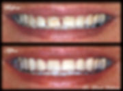 Veneers on Front Teeth Smile