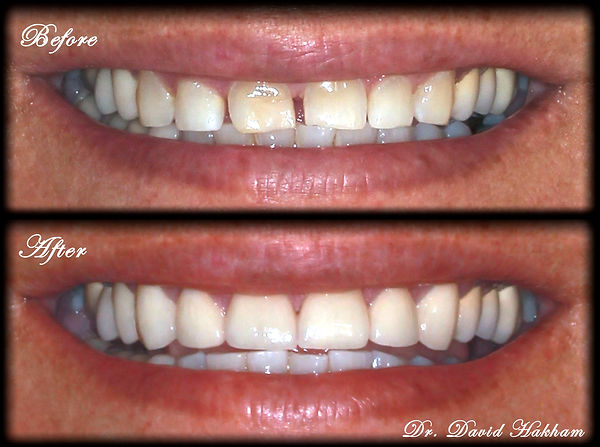 Veneers on Front Teeth Smile