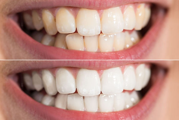 Before and After results of teeth whitening at Family Dentistry and Orthodontics in Montebello; She is smiling and very happy with her beautiful white new smile