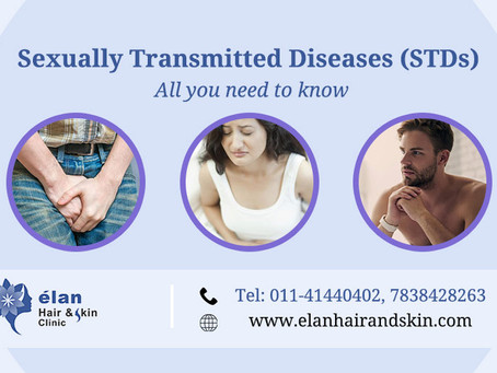 Sexually Transmitted Diseases (STDs)- All You Need to Know