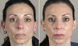 skin-resurfacing-01a-595x355.jpg