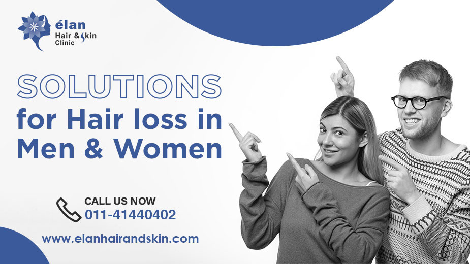 Solutions For Hair Loss in Men and Women