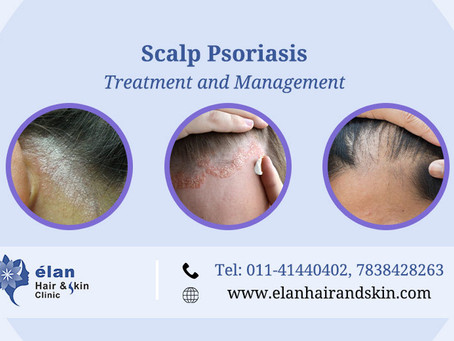 Scalp Psoriasis: Treatment And Management
