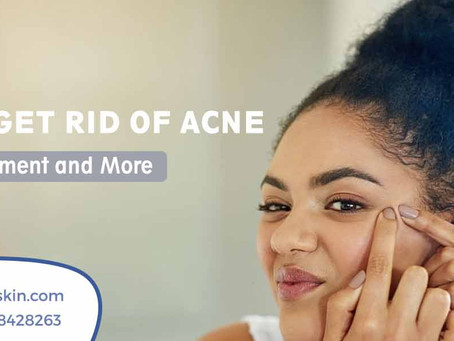 How to Get Rid of Acne: Causes, Treatments and More