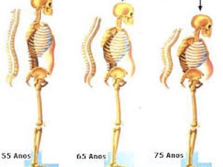 Quais modificações posturais encontramos no idoso?